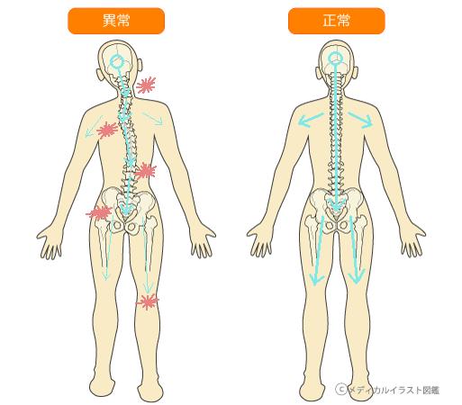 歪んだ骨格と正常な骨格
